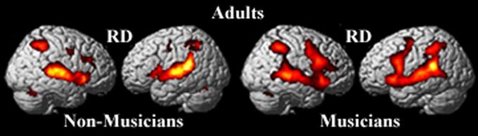 cerebro-musico-no-musico-adulto