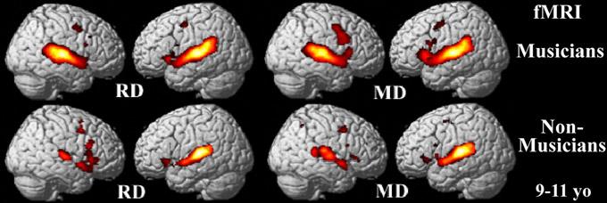 cerebro-música-no-musico-ninos-9-a-11